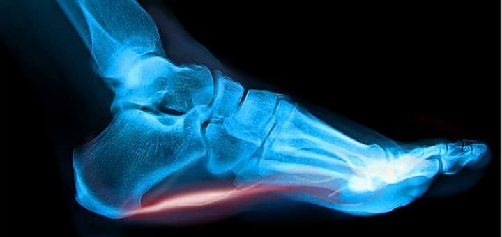 Plantar fasciitis can take a long time to treat and heal.